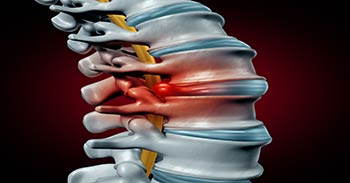 Spinal Cord Injury Lawyer Tampa - Photo of the spinal cord